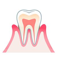 Estado de la gingivitis