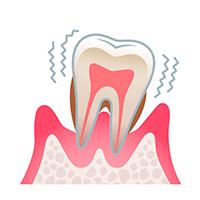 Estado de la periodontitis