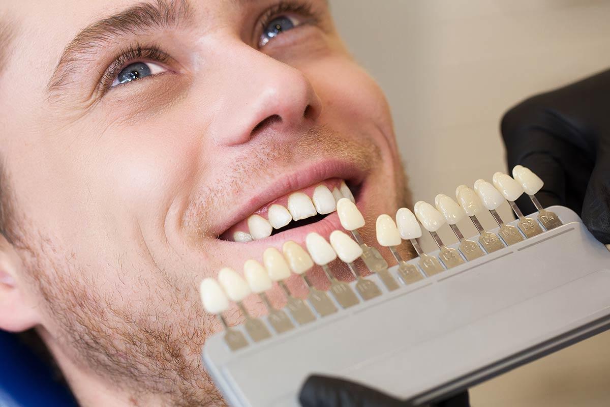 Blanqueamiento dental, todo lo que debes saber