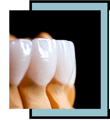 Tratamientos de estética dental en Torremolinos