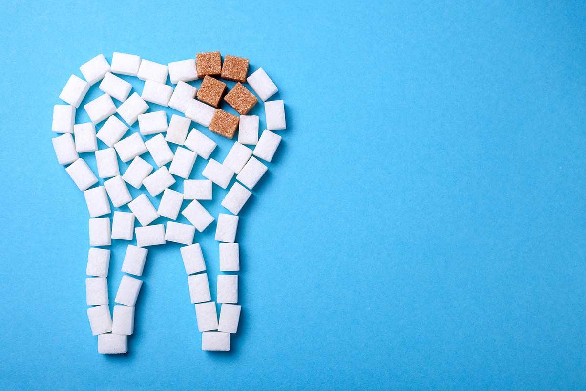 Los empastes dentales como solución a la caries