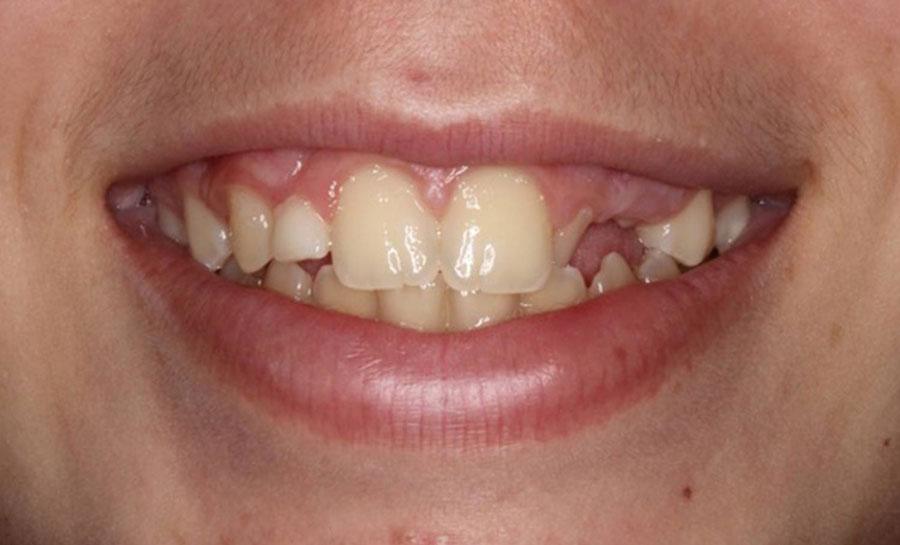 Caso ortodoncia antes