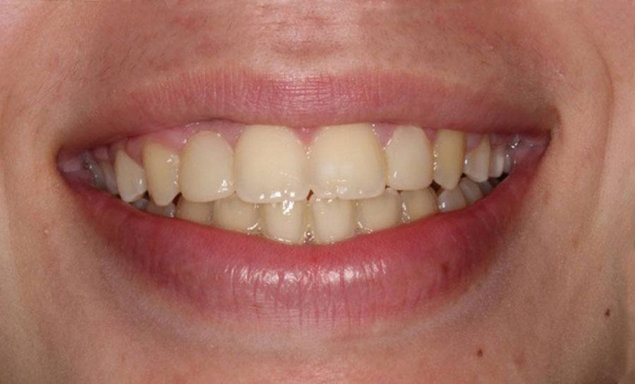 Caso ortodoncia 1 después