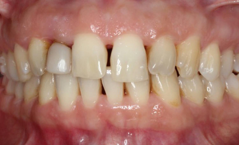 Caso 4 ortodoncia