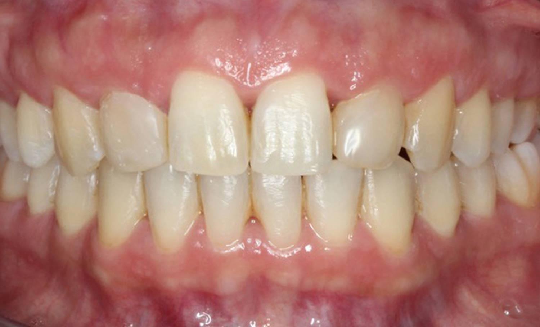 Caso 4 después ortodoncia