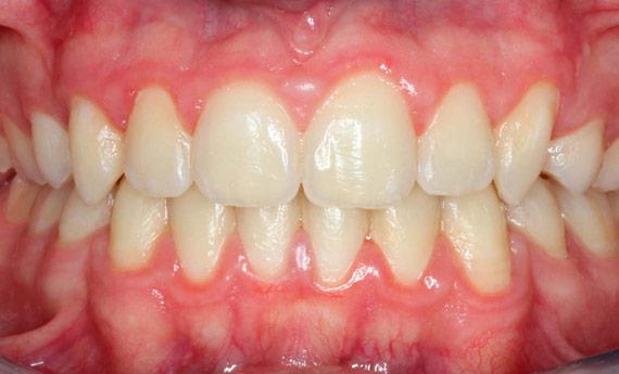 Resultado tras la ortodoncia