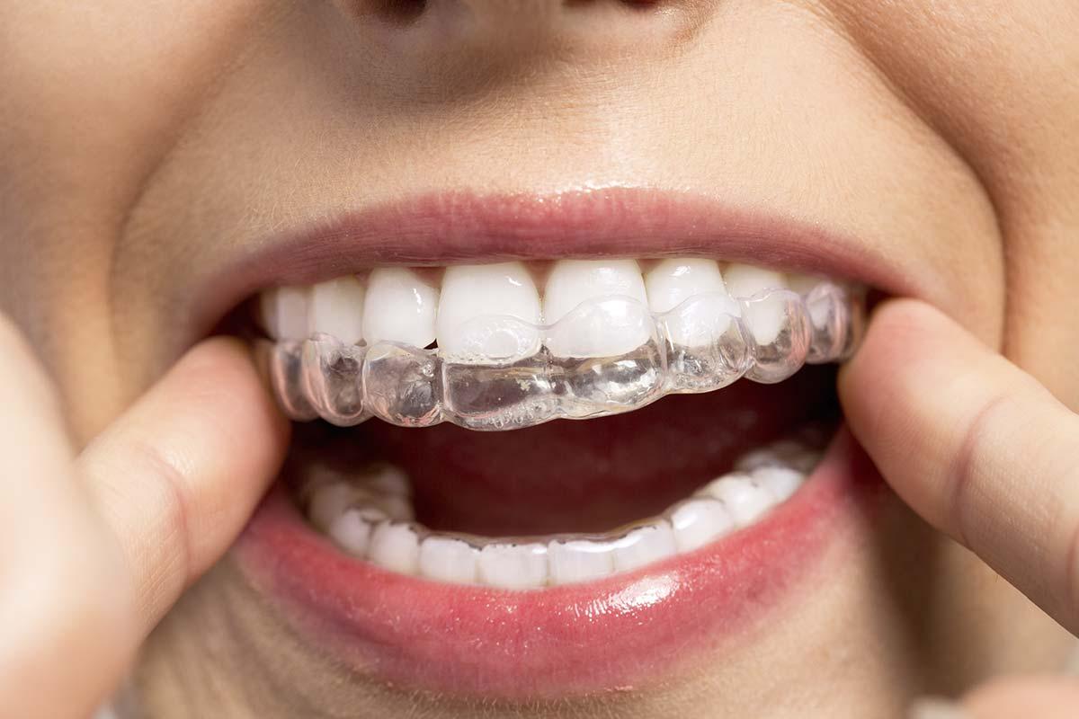 Colocación ortodoncia invisible