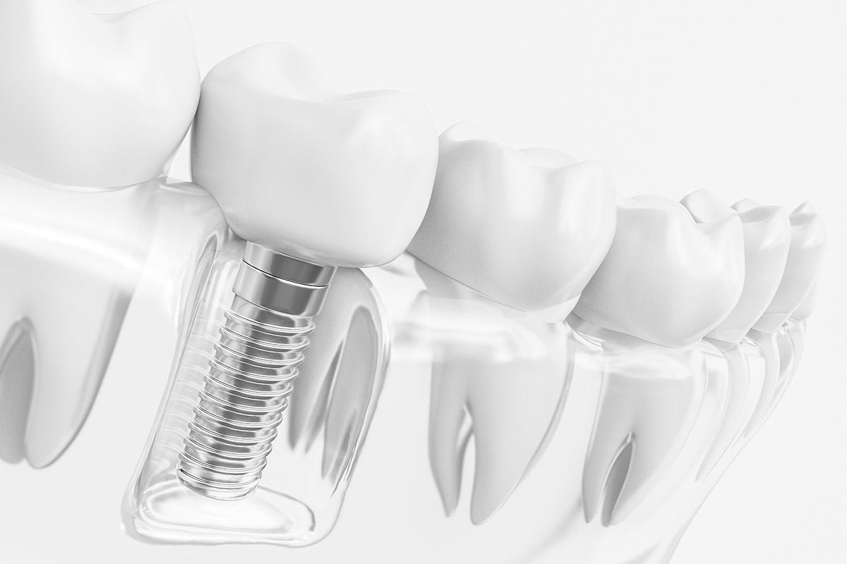 ¿Cuáles son los beneficios de los implantes dentales?