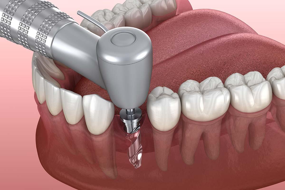 Oseointegración implantes dentales
