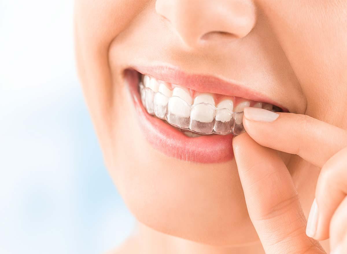 Ortodoncia invisible con alineadores en Torremolinos