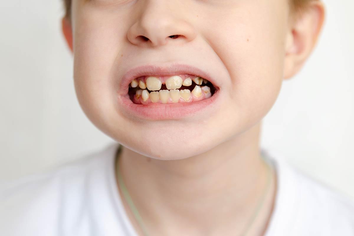 ¿Cuáles son las causas de los dientes amarillos en niños?